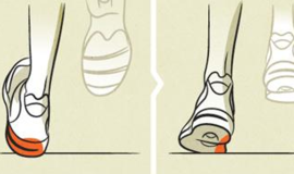 Understanding Pronation